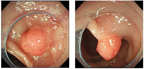 大腸ポリープ
